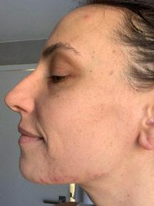 adult acne food freedom