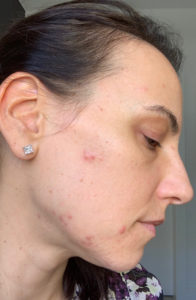 acne triggering eating disorders
